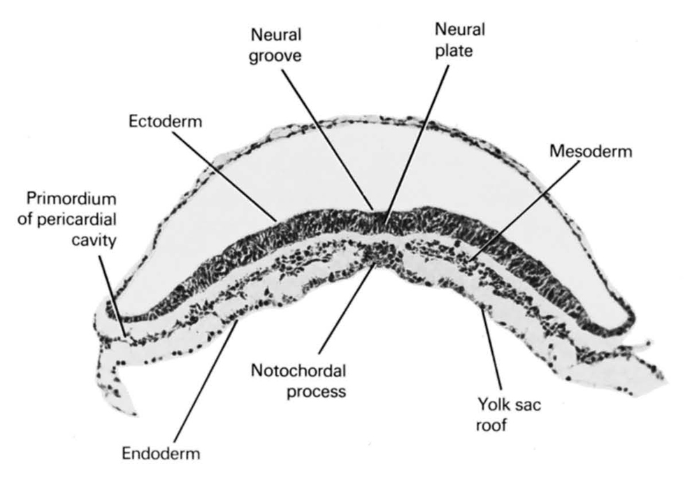 ectoderm, endoderm, mesoderm, neural groove, neural plate, notochordal process, primordial pericardial cavity, umbilical vesicle roof