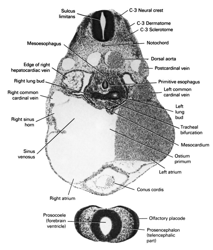 C-3 dermatome, C-3 neural crest, C-3 sclerotome, conus cordis, dorsal aorta, edge of right hepatocardiac vein, left atrium, left common cardinal vein, left lung bud, mesocardium, mesoesophagus, notochord, olfactory placode, ostium primum, postcardinal vein, primitive esophagus, prosencephalon (telencephalic part), prosocoele (forebrain ventricle), right atrium, right common cardinal vein, right horn of sinus venosus, right lung bud, sinus venosus, sulcus limitans, tracheal bifurcation