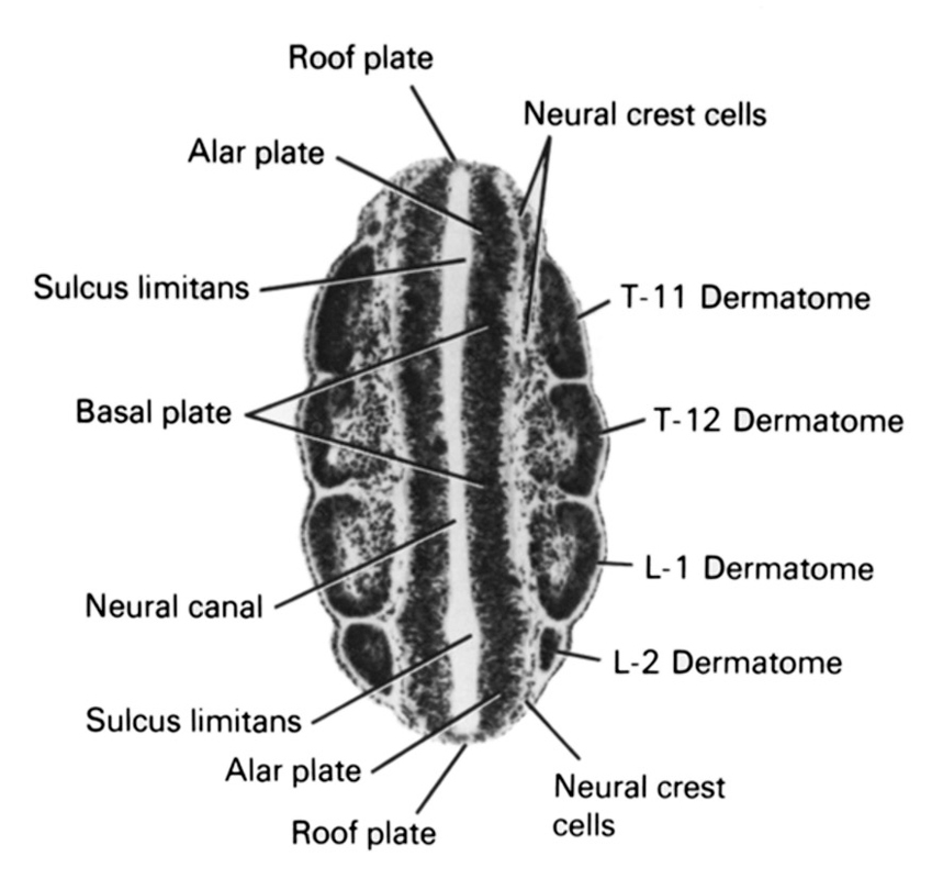 L-1 dermatome, L-2 dermatome, T-11 dermatome, T-12 dermatome, alar plate, basal plate, neural canal, neural crest cells, roof plate, sulcus limitans
