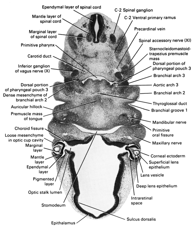 C-2 spinal ganglion, C-2 ventral primary ramus, aortic arch 3, auricular hillock, branchial arch 2, branchial arch 3, branchial groove 1, carotid duct, choroid fissure, corneal ectoderm, deep lens epithelium, dense mesenchyme of branchial arch 2, dorsal portion of pharyngeal pouch 3, ependymal layer, ependymal layer of spinal cord, epithalamus, inferior ganglion of vagus nerve (CN X), intraretinal space (optic vesicle cavity), lens vesicle, loose mesenchyme in optic cup cavity, mandibular nerve, mantle layer, mantle layer of spinal cord, marginal layer, marginal layer of spinal cord, maxillary nerve (CN V₂), maxillary vein, optic stalk lumen, pigmented layer of retina, precardinal vein, premuscle mass of tongue, primitive oral fissure, primitive pharynx, spinal accessory nerve (CN XI), sternocleidomastoid / trapezius premuscle mass, stomodeum, sulcus dorsalis, superficial lens epithelium, thyroglossal duct
