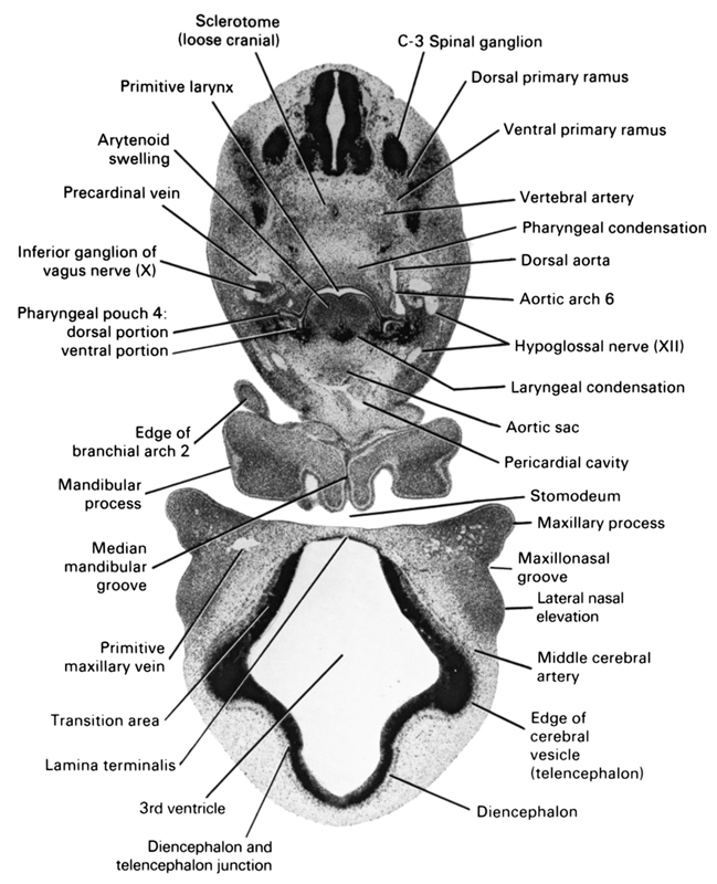 C-3 spinal ganglion, aortic arch 6, aortic sac, arytenoid swelling, diencephalon, diencoel (third ventricle), dorsal aorta, dorsal portion of pharyngeal pouch 4, dorsal primary ramus, edge of cerebral vesicle (telencephalon), edge of pharyngeal arch 2, hypoglossal nerve (CN XII), inferior ganglion of vagus nerve (CN X), junction of diencephalon and telencephalon, lamina terminalis, laryngeal condensation, lateral nasal elevation, mandibular process, maxillary process, maxillonasal groove, median mandibular groove, middle cerebral artery, pericardial cavity, pharyngeal condensation, precardinal vein, primitive larynx, primitive maxillary vein, sclerotome (loose cranial), stomodeum, transition area, ventral portion of pharyngeal pouch 4, ventral primary ramus, vertebral artery