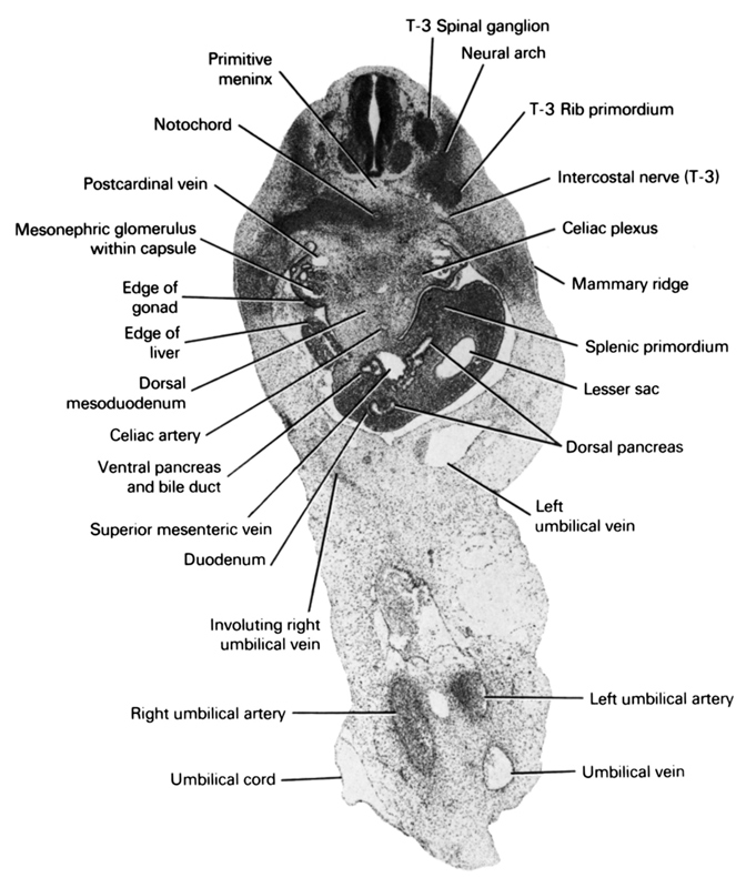 T-3 rib primordium, T-3 spinal ganglion, celiac artery, celiac plexus, dorsal mesoduodenum, dorsal pancreas, duodenum, edge of gonad, edge of liver, intercostal nerve (T-3), involuting right umbilical vein, left umbilical artery, left umbilical vein, lesser  sac, mammary ridge, mesonephric glomerulus within capsule, neural arch, notochord, postcardinal vein, primitive meninx, right umbilical artery, splenic primordium, superior mesenteric vein, umbilical cord, umbilical vein, ventral pancreas and bile duct