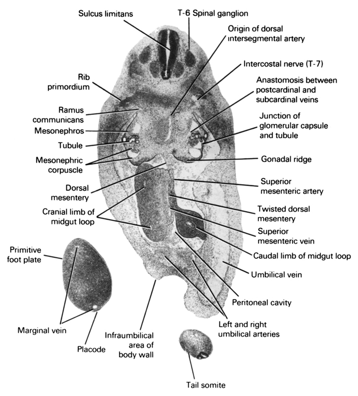 T-6 spinal ganglion, anastomosis between postcardinal and subcardinal veins, caudal limb of midgut loop, cranial limb of midgut loop, dorsal mesentery, gonadal ridge, infraumbilical area of body wall, intercostal nerve (T-7), junction of glomerular capsule and tubule, left and right umbilical arteries, marginal vein, mesonephric corpuscle, mesonephros, origin of dorsal intersegmental artery, peritoneal cavity, placode, primitive foot plate, ramus communicans, rib primordium, sulcus limitans, superior mesenteric artery, superior mesenteric vein, tail somite, tubule, twisted dorsal mesentery, umbilical vein