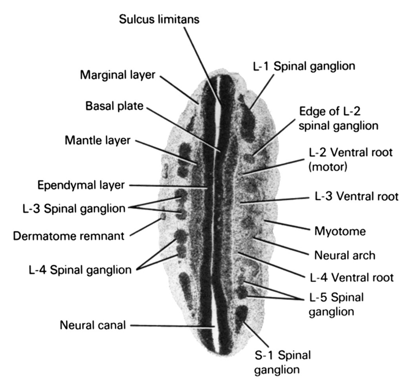L-1 spinal ganglion, L-2 ventral root (motor), L-3 spinal ganglion, L-3 ventral root, L-4 spinal ganglion, L-4 ventral root, L-5 spinal ganglion, S-1 spinal ganglion, basal plate, dermatome remnant, edge of L-2 spinal ganglion, ependymal layer, mantle layer, marginal layer, myotome, neural arch, neural canal, sulcus limitans