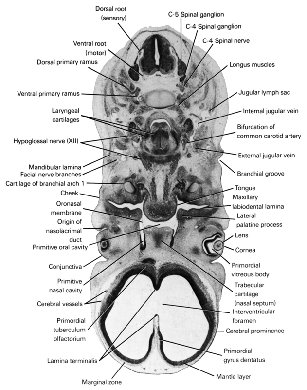 C-4 spinal ganglion, C-4 spinal nerve, C-5 spinal ganglion, bifurcation of common carotid artery, branchial groove, cerebral prominence, cerebral vessels, cheek, conjunctiva, cornea, dorsal primary ramus, dorsal root (sensory), external jugular vein, facial nerve branches, hypoglossal nerve (CN XII), internal jugular vein, interventricular foramen, jugular lymph sac, lamina terminalis, laryngeal cartilages, lateral palatine process, lens, longus muscles, mandibular lamina, mantle layer, marginal zone, maxillary labiodental lamina, origin of nasolacrimal duct, oronasal membrane, pharyngeal arch 1 cartilage (Meckel), primitive nasal cavity, primitive oral cavity, primordial gyrus dentatus, primordial tuberculum olfactorium, primordial vitreous body, tongue, trabecular cartilage (nasal septum), ventral primary ramus, ventral root (motor)