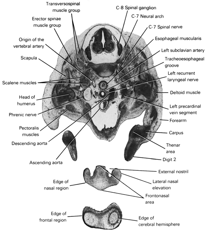 C-7 neural arch, C-7 spinal nerve, C-8 spinal ganglion, ascending aorta, carpus, deltoid muscle, descending aorta, digit 2, edge of cerebral hemisphere, edge of frontal region, edge of nasal region, erector spinae muscle group, esophageal muscularis, external nostril, forearm, frontonasal area, head of humerus, lateral nasal elevation, left precardinal vein segment, left recurrent laryngeal nerve, left subclavian artery, origin of the vertebral artery, pectoralis muscles, phrenic nerve, scalene muscles, scapula, thenar area, tracheo-esophageal groove, transversospinal muscle group