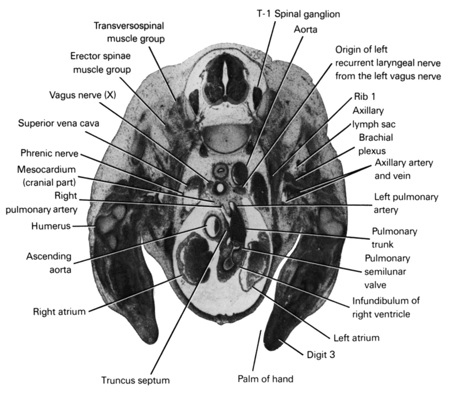 T-1 spinal ganglion, aorta, ascending aorta, axillary artery, axillary lymph sac, axillary vein, brachial plexus, digit 3, erector spinae muscle group, humerus, infundibulum of right ventricle, left atrium, left pulmonary artery, mesocardium (cranial part), origin of left recurrent laryngeal nerve from the left vagus nerve, palm of hand, phrenic nerve, pulmonary semilunar valve, pulmonary trunk, rib 1, right atrium, right pulmonary artery, superior vena cava, transversospinal muscle group, truncus septum, vagus nerve (CN X)