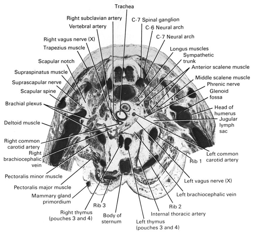 C-6 neural arch, C-7 neural arch, C-7 spinal ganglion, anterior scalene muscle, body of sternum, brachial plexus, deltoid muscle, glenoid fossa, head of humerus, internal thoracic artery, jugular lymph sac, left brachiocephalic vein, left common carotid artery, left thymus (pouches 3 and 4), left vagus nerve (CN X), longus muscles, mammary gland primordium, middle scalene muscle, pectoralis major muscle, pectoralis minor muscle, phrenic nerve, rib 1, rib 2, rib 3, right brachiocephalic vein, right common carotid artery, right subclavian artery, right thymus (pouches 3 and 4), right vagus nerve (CN X), scapular notch, scapular spine, suprascapular nerve, supraspinatus muscle, sympathetic trunk, trachea, trapezius muscle, vertebral artery