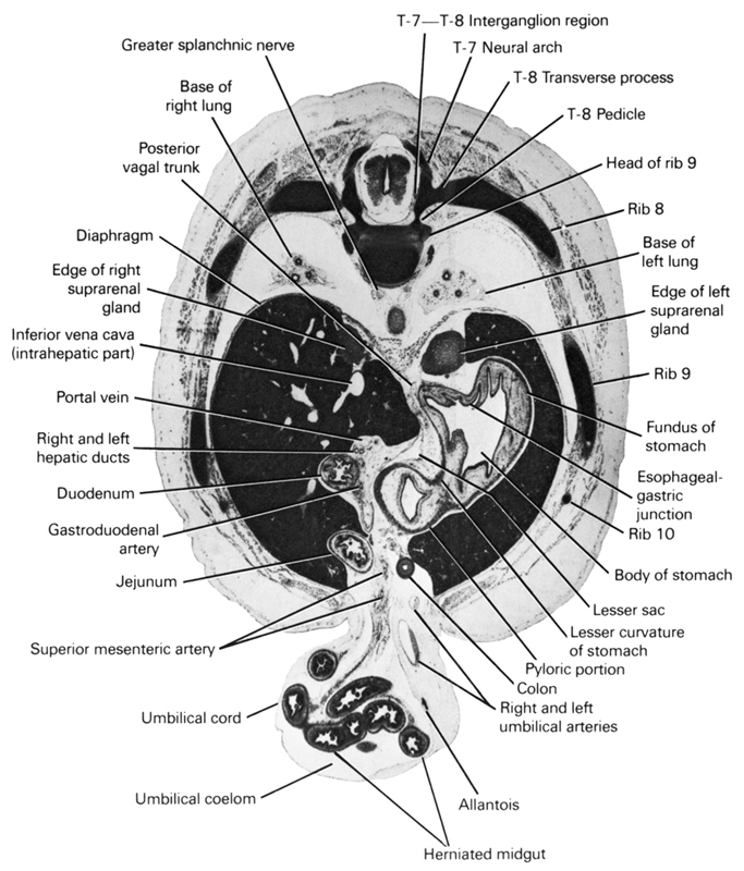 T-6 / T-7 interganglion region, T-7 neural arch, T-8 pedicle, T-8 transverse process, allantois, base of left lung, base of right lung, body of stomach, colon, diaphragm, duodenum, edge of left suprarenal gland, edge of right suprarenal gland, esophageal-gastric junction, fundus of stomach, gastroduodenal artery, greater splanchnic nerve, head of rib 9, herniated midgut, inferior vena cava (intrahepatic part), jejunum, lesser curvature of stomach, lesser sac, portal vein, posterior vagal trunk, pyloric portion, rib 10, rib 8, rib 9, right and left hepatic ducts, right and left umbilical arteries, superior mesenteric artery, umbilical coelom, umbilical cord