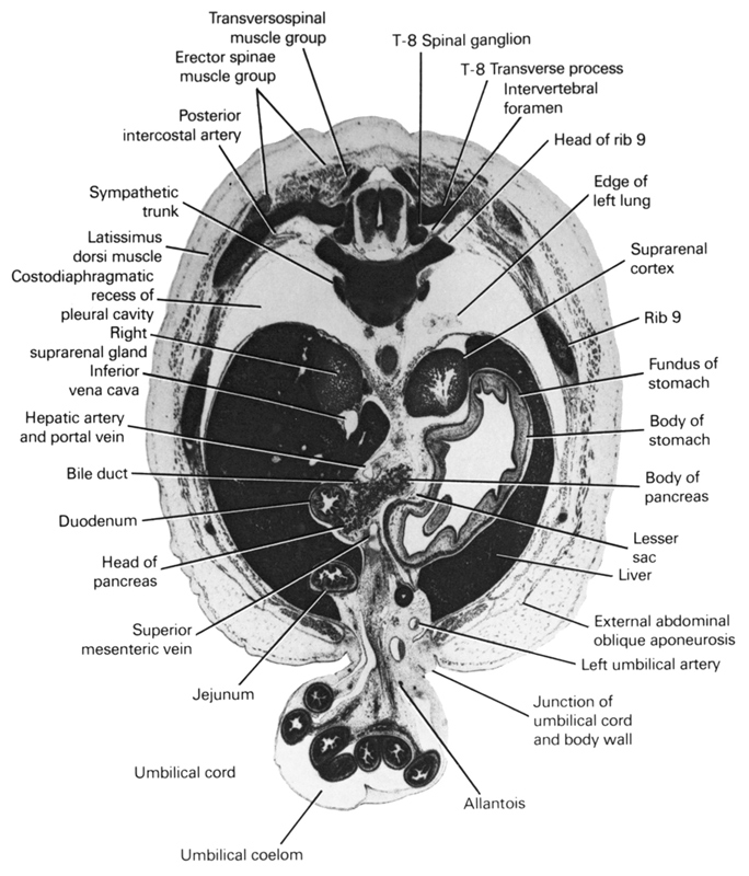 T-8 spinal ganglion, T-8 transverse process, allantois, bile duct, body of pancreas, body of stomach, costodiaphragmatic recess of pleural cavity, duodenum, edge of left lung, erector spinae muscle group, external abdominal oblique aponeurosis, fundus of stomach, head of pancreas, head of rib 9, hepatic artery and portal vein, inferior vena cava, intervertebral foramen, jejunum, junction of umbilical cord and body wall, latissimus dorsi muscle, left umbilical artery, lesser sac, liver, posterior intercostal artery, rib 9, right suprarenal gland, superior mesenteric vein, suprarenal cortex, sympathetic trunk, transversopinal muscle group, umbilical coelom, umbilical cord