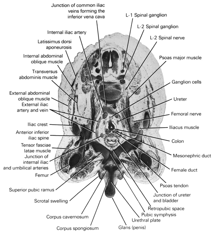 L-1 spinal ganglion, L-2 spinal ganglion, L-2 spinal nerve, anterior inferior iliac spine, colon, corpus cavernosum, corpus spongiosum, external abdominal oblique muscle, external iliac artery and vein, female duct, femoral nerve, femur, ganglion cells, glans (penis), iliac crest, iliacus muscle, internal abdominal oblique muscle, internal iliac artery, junction of common iliac veins forming the inferior vena cava, junction of internal iliac and umbilical arteries, junction of ureter and urinary bladder, latissimus dorsi aponeurosis, mesonephric duct, psoas major muscle, psoas tendon, pubic symphysis, retropubic space, scrotal swelling, superior pubic ramus, tensor fasciae latae muscle, transversus abdominis muscle, ureter, urethral plate
