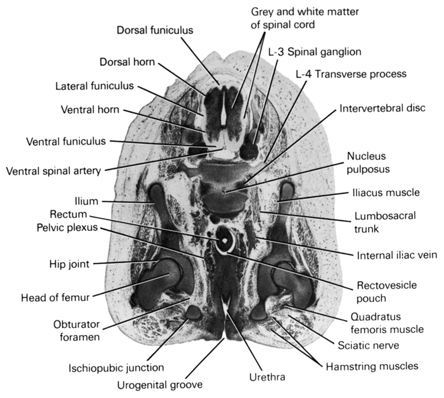 L-3 spinal ganglion, L-4 transverse process, dorsal funiculus, dorsal horn, grey and white matter of spinal cord, hamstring muscles, head of femur, hip joint, iliacus muscle, ilium, internal iliac vein, intervertebral disc, ischiopubic junction, lateral funiculus, lumbosacral trunk, nucleus pulposus, obturator foramen, pelvic plexus, quadratus femoris muscle, rectovesicle pouch, rectum, sciatic nerve, urethra, urogenital groove, ventral funiculus, ventral horn, ventral spinal artery