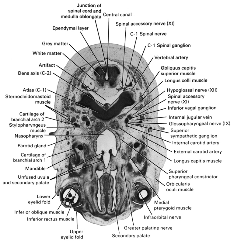 C-1 spinal ganglion, C-1 spinal nerve, C-1 vertebra (atlas), artifact(s), cartilage of pharyngeal arch 2, central canal, dens of C-2 vertebra (axis), ependymal layer, external carotid artery, glossopharyngeal nerve (CN IX), greater palatine nerve, grey matter, hypoglossal nerve (CN XII), inferior ganglion of vagus nerve (CN X), inferior oblique muscle, inferior rectus muscle, infra-orbital nerve, internal carotid artery, internal jugular vein, junction of spinal cord and medulla oblongata, longus capitis muscle, longus colli muscle, lower eyelid fold, mandible, medial pterygoid muscle, nasopharynx, obliquus capitis superior muscle, orbicularis oculi muscle, parotid gland, pharyngeal arch 1 cartilage (Meckel), secondary palate, spinal accessory nerve (CN XI), sternocleidomastoid muscle, stylopharyngeus muscle, superior pharyngeal constrictor muscle, superior sympathetic ganglion, unfused uvula and secondary palate, upper eyelid fold, vertebral artery, white matter