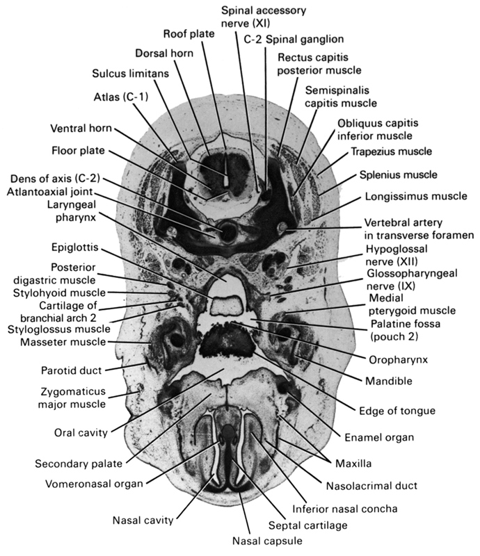 C-1 vertebra (atlas), C-2 spinal ganglion, atlanto-axial joint, cartilage of pharyngeal arch 2, dens of C-2 vertebra (axis), dorsal horn of grey matter, edge of tongue, enamel organ, epiglottis, floor plate, glossopharyngeal nerve (CN IX), hypoglossal nerve (CN XII), inferior nasal concha, laryngeal pharynx, longissimus muscle, mandible, masseter muscle, maxilla, medial pterygoid muscle, nasal capsule, nasal cavity (nasal sac), nasolacrimal duct, obliquus capitis inferior muscle, oral cavity, oropharynx, palatine fossa (pouch 2), parotid duct, posterior digastric muscle, rectus capitis posterior muscle, roof plate, secondary palate, semispinalis capitis muscle, septal cartilage, spinal accessory nerve (CN XI), splenius muscle, styloglossus muscle, stylohyoid muscle, sulcus limitans, trapezius muscle, ventral horn of grey matter, vertebral artery in transverse foramen, vomeronasal organ, zygomaticus major muscle