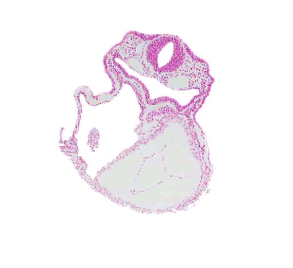 amnion attachment, caudal edge of right ventricle, cephalic edge of atrioventricular canal, dorsal aorta, foregut, laryngotracheal groove, lateral pharyngeal recess, left ventricle, mesocardium, otic placode, rhombencephalon (Rh. 5)