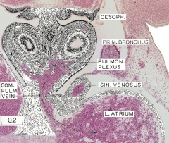 Mesenchymal tissue in the pulmonary and esophageal regions - Overlay