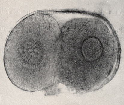 Intact ovum photographed by ordinary microscopy