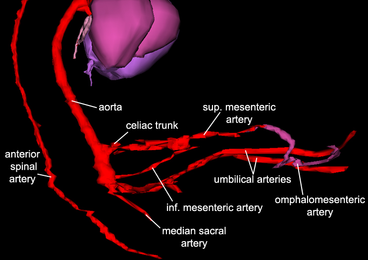 Arteries - Lower Right Lateral
