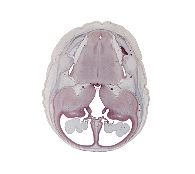 anterior inferior cerebellar artery, anterior semicircular duct, basilar artery, central canal, choroid fissure, edge of interventricular foramen, hypothalamic sulcus, hypothalamus, insula of cerebral hemisphere, lateral recess of rhombencoel (fourth ventricle), lateral ventricle, lateral ventricular eminence (telencephalon), medial accessory olivary nucleus, medial lemniscus, medial ventricular eminence (diencephalon), medulla oblongata, posterior communicating artery, posterior inferior cerebellar artery, sigmoid sinus, subarachnoid space, sulcus terminalis, third ventricle