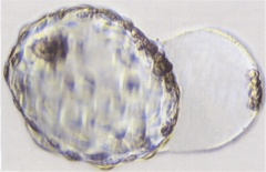 Terminal phase of hatching