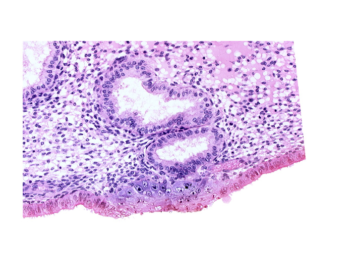 cytotrophoblast, edematous endometrial stroma (decidua), endometrial epithelium, endometrial gland, interrupted endometrial epithelium, solid syncytiotrophoblast, uterine cavity