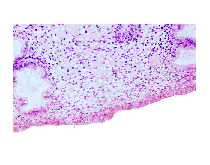 disrupted endometrial epithelium, endometrial epithelium, lumen of endometrial gland