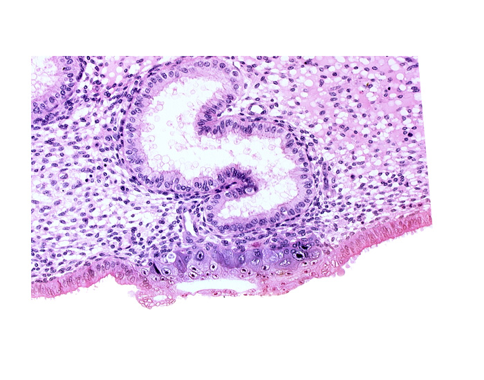 blastocystic cavity (blastocoele), cytotrophoblast, endometrial epithelium, endometrial sinusoid, extra-embryonic endoblast, lumen of endometrial gland, membranous trophoblast at abembryonic pole, solid syncytiotrophoblast, uterine cavity