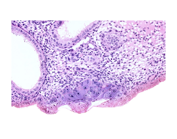 amniotic cavity, blastocystic cavity (blastocoele), embryonic disc, endometrial epithelium, endometrial sinusoid, membranous trophoblast at abembryonic pole
