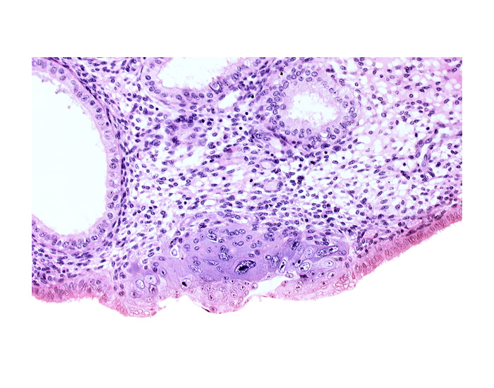 blastocystic cavity (blastocoele), cytotrophoblast, edematous endometrial stroma (decidua), edge of endometrial gland, embryonic disc, endometrial epithelium, membranous trophoblast at abembryonic pole, solid syncytiotrophoblast, syncytiotrophoblast / decidua interface