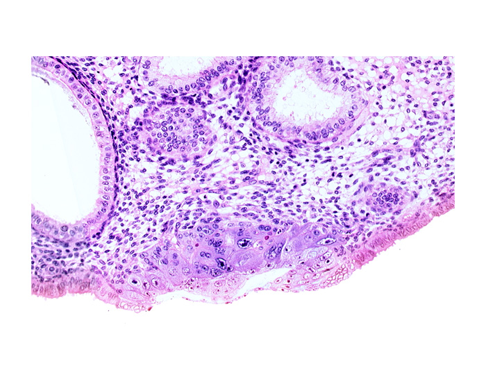 amniotic cavity, blastocystic cavity (blastocoele), cytotrophoblast, embryonic disc, endometrial gland, endometrial sinusoid, lumen of endometrial gland, membranous trophoblast at abembryonic pole