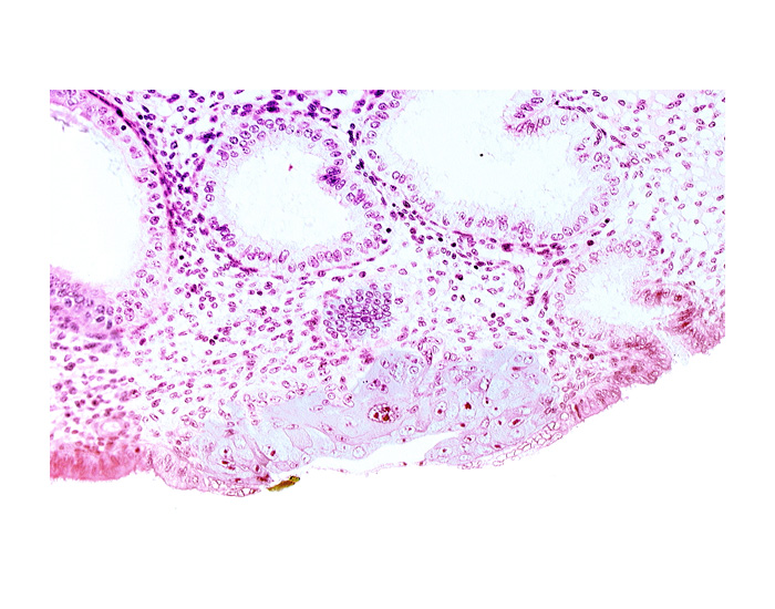 blastocystic cavity (blastocoele), edge of embryonic disc, endometrial epithelium, lumen of endometrial gland, membranous trophoblast at abembryonic pole, mouth of endometrial gland, solid syncytiotrophoblast