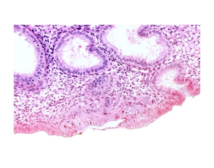 blastocystic cavity (blastocoele), cytotrophoblast, endometrial epithelium, endometrial gland, endometrial sinusoid, membranous trophoblast at abembryonic pole, mouth of endometrial gland, uterine cavity