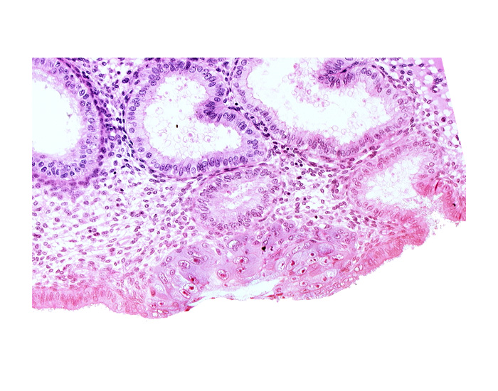 blastocystic cavity (blastocoele), endometrial epithelium, endometrial gland, membranous trophoblast at abembryonic pole, mouth of endometrial gland