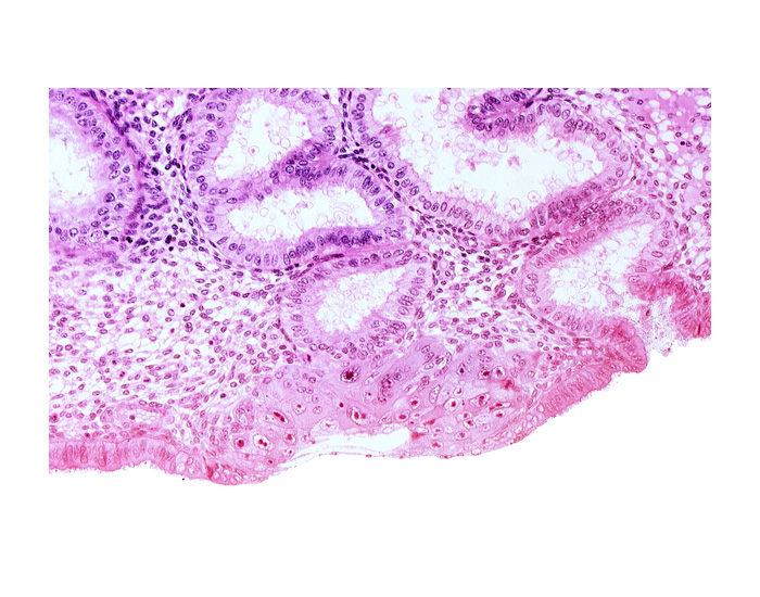 blastocystic cavity (blastocoele), cytotrophoblast, junction of endometrial gland and syncytiotrophoblast, lumen of endometrial gland, membranous trophoblast at abembryonic pole, solid syncytiotrophoblast