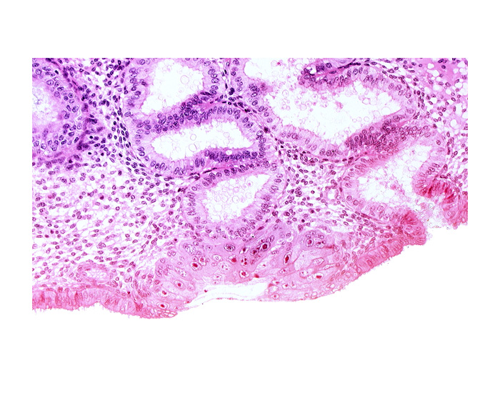 blastocystic cavity (blastocoele), endometrial epithelium, endometrial gland, membranous trophoblast at abembryonic pole, mouth of endometrial gland, solid syncytiotrophoblast, uterine cavity