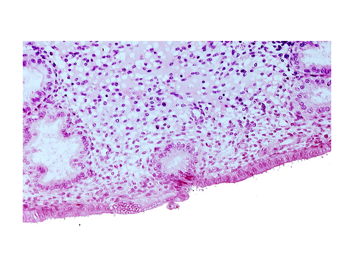 disrupted endometrial epithelium, edematous endometrial stroma (decidua), endometrial epithelium, endometrial gland