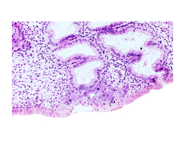 blastocystic cavity (blastocoele), cytotrophoblast, endometrial epithelium, endometrial sinusoid, junction of endometrial gland and syncytiotrophoblast, membranous trophoblast at abembryonic pole, space(s) within syncytiotrophoblast