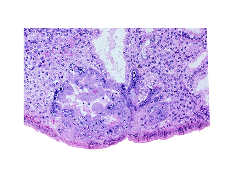 edematous endometrial stroma (decidua), endometrial epithelium, lumen of endometrial gland, maternal blood cells in intercommunicating lacunae, primary umbilical vesicle cavity, syncytiotrophoblast