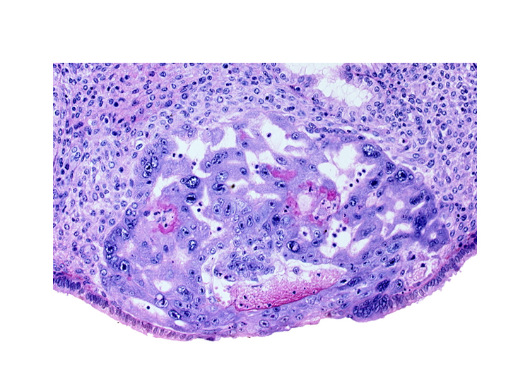 disrupted endometrial epithelium, intact endometrial epithelium, maternal blood cells in primary umbilical vesicle cavity