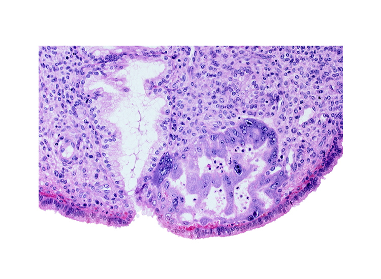 endometrial epithelium, endometrial sinusoid, maternal blood cells in intercommunicating lacunae, mouth of endometrial gland