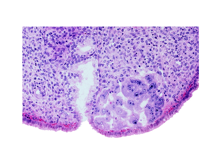 endometrial sinusoid, intact endometrial epithelium, mouth of endometrial gland, uterine cavity