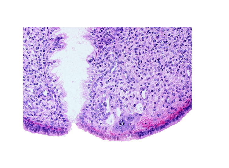 endometrial sinusoid, endometrial stroma (decidua), intact endometrial epithelium, mouth of endometrial gland, syncytiotrophoblast