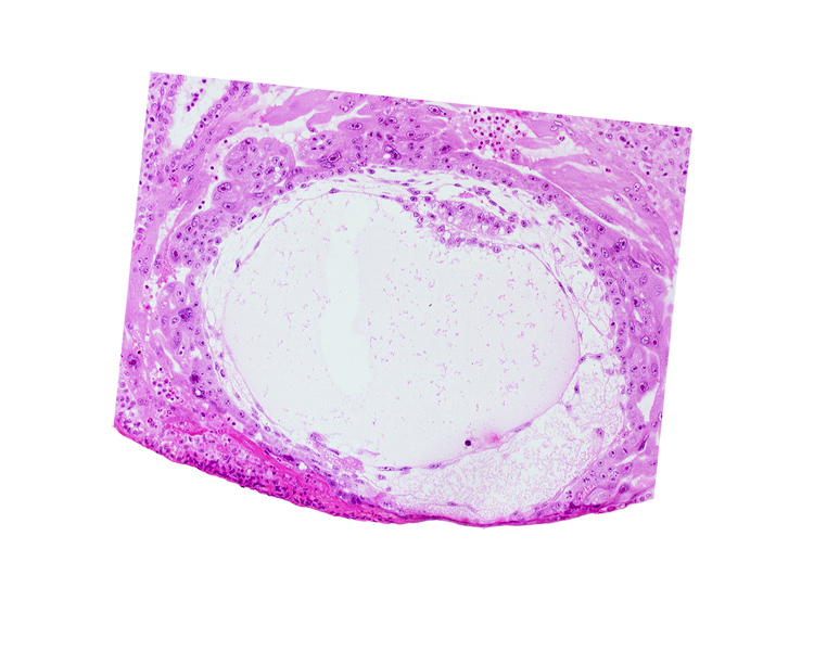 exocoelomic (Heuser's) membrane, extra-embryonic mesoblast, fibrous coagulum, primary umbilical vesicle cavity, uterine cavity
