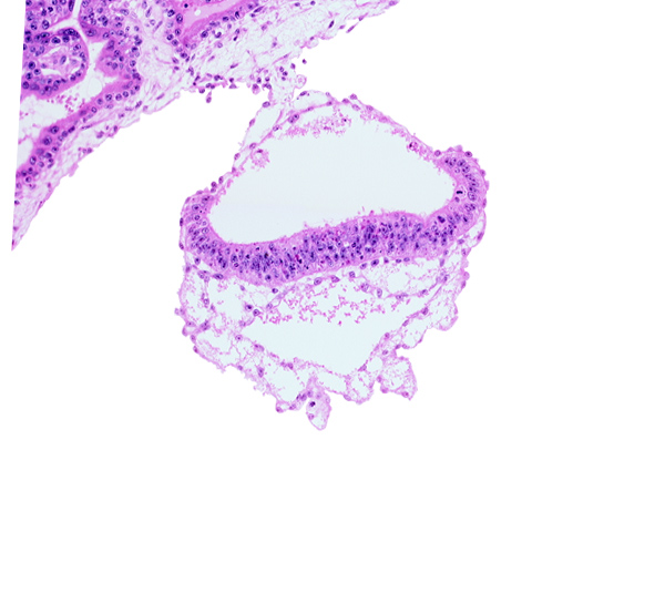 amniotic cavity, connecting stalk, epiblast, head mesenchyme, hypoblast, mesoblast (mesenchyme), mesothelium, primordial germ cell(s), two-layered umbilical vesicle wall, umbilical vesicle cavity