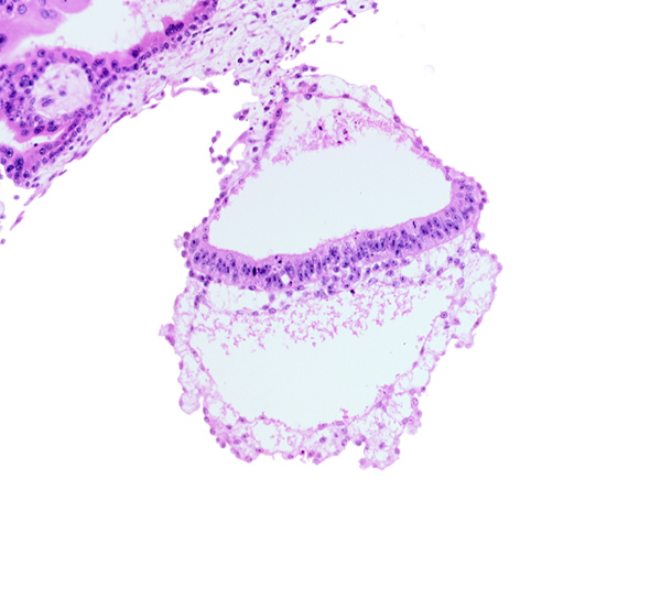 extra-embryonic ectoderm, gastrulation (primitive) node, head mesenchyme, hypoblast, one-layered epiblast