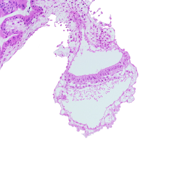 connecting stalk, cyst in umbilical vesicle wall, embryonic endoderm, embryonic mesoderm, gastrulation (primitive) streak, lateral edge of embryonic disc, middle part of amniotic duct, presumptive angioblastic tissue