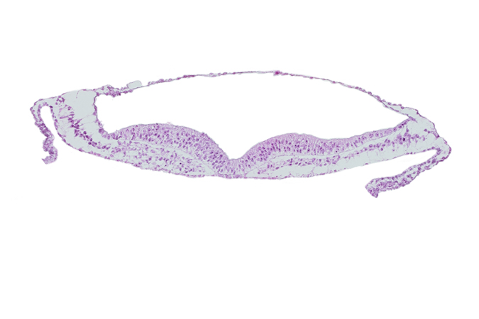 head mesenchyme, neural ectoderm, presumptive neural crest, umbilical vesicle wall