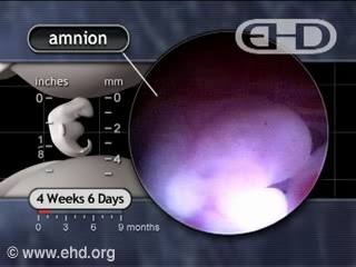 Play Movie - Amniotic Fluid
