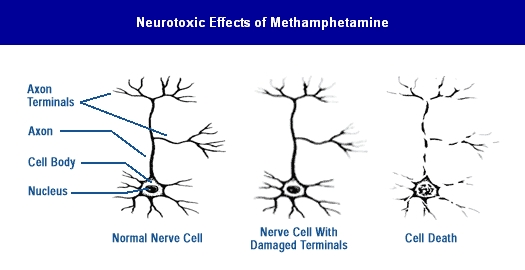 neurotoxic effects of methamphetamine
