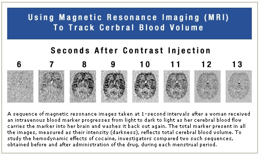 Using magnetic resonance imaging (MRI) to track cerebral blood volume